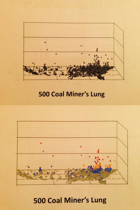 OccupationalLungDisx_500_CoalMinersLung_OU